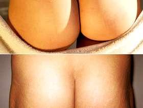 Freecycle Bottom