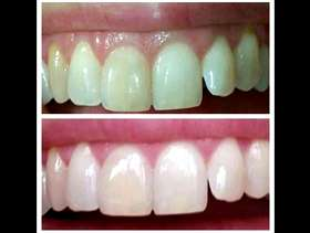 Freecycle Teeth whitening toothpaste
